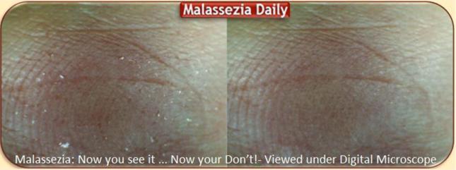 Malassezia now you see it