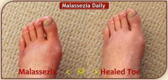 Malassezia Healed Toe MD